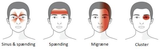 spændingshovedpine, migræne, clusterhovedpine